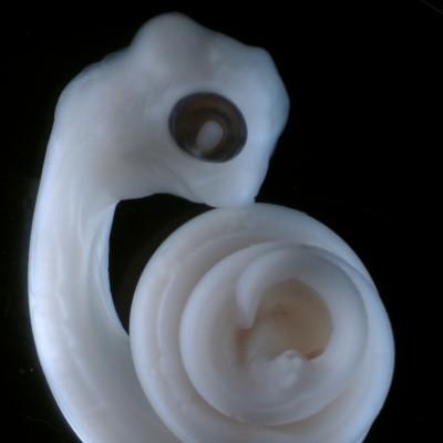 Python embryo (Patrick Tschopp)